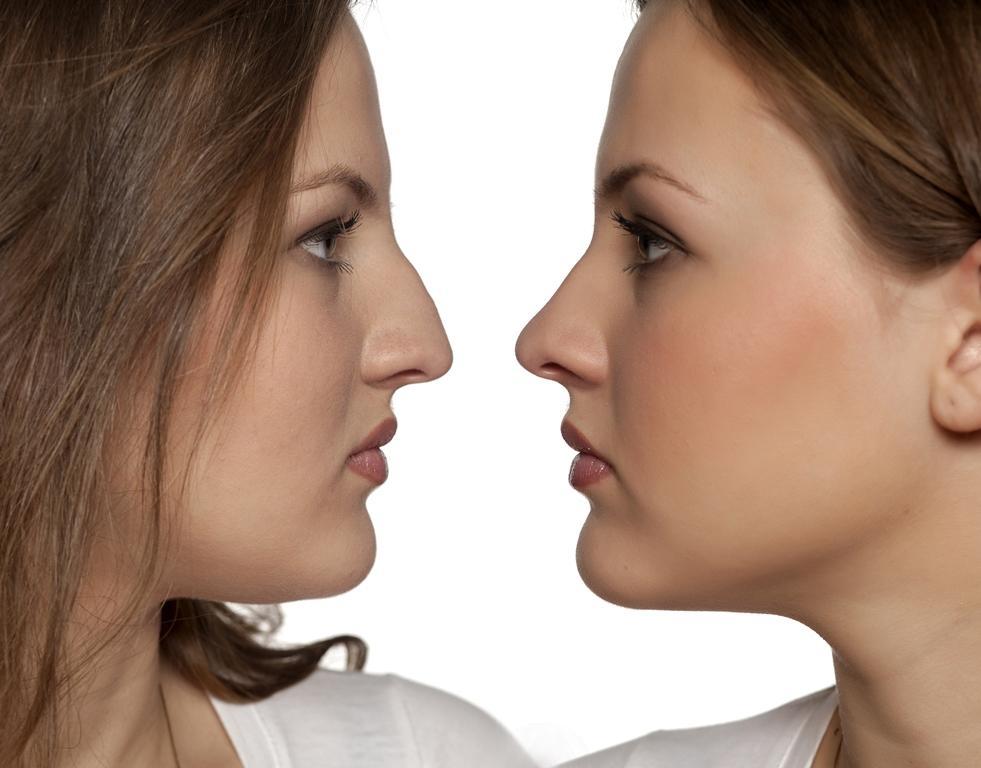 Aναίμακτη Ρινοπλαστική με Υδροξυαπατίτη - «15-minute nose job»