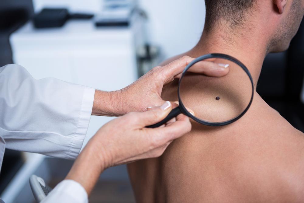 Καρκίνος του δέρματος: Ο πιο ύπουλος εχθρός του καλοκαιριού